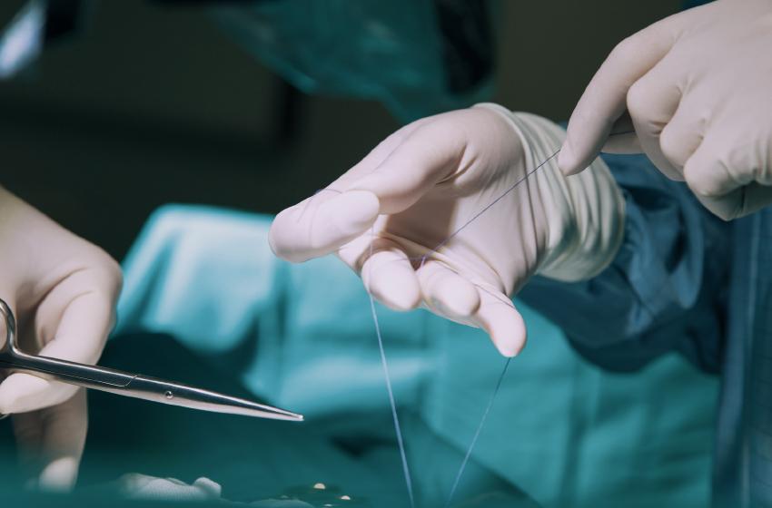 các loại chỉ phẫu thuật phổ biến